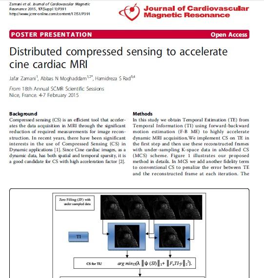 Distributed Compressed Sensing to Accelerate Cine Cardiac MRI