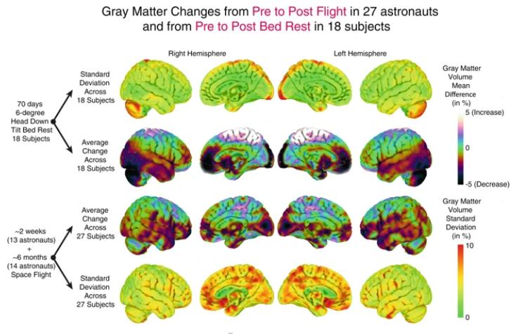 Brain structural